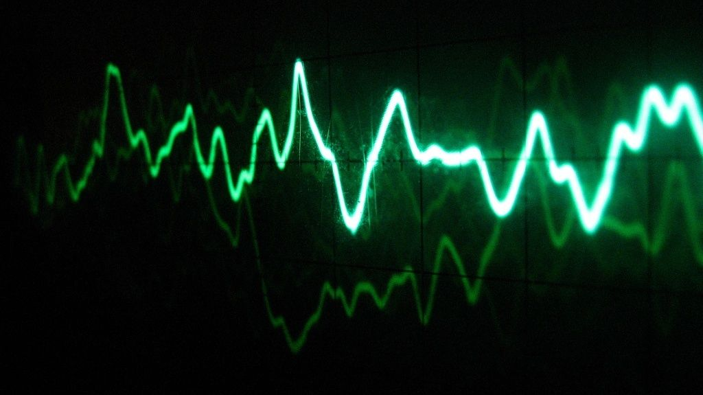 Voice Pattern Waveform